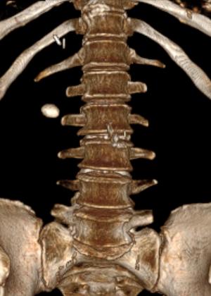 Камень лоханки правой почки 20*13 мм. Выполнена перкутанная нефротитотрипсия справа