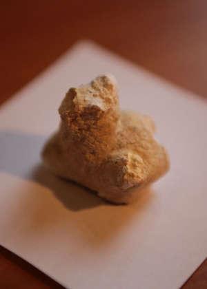 Удаленный коралловидный камень почки