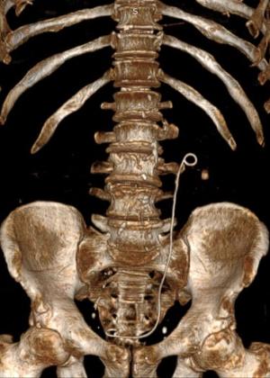 Камень левого мочеточника и левой почки, стент левого мочеточника.  Выполнена: дистанционная литотрипсия