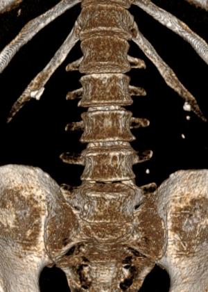 Камни обеих почек, левого мочеточника. Выполнены: чрезкожная перкутанная нефролитотрипсия и уретероскопия